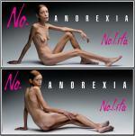 Campaña Anorexia